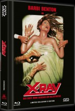 X-Ray (Cover A)